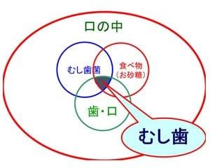 むし歯の成立図「カエスの輪」